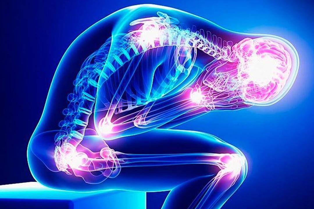 cov fibromialgia